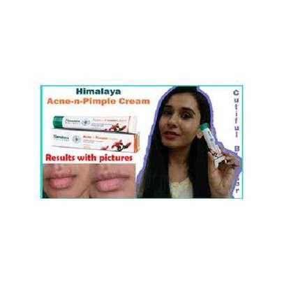 Himalaya Skin Care Pimple Acne Clear Cream image 3