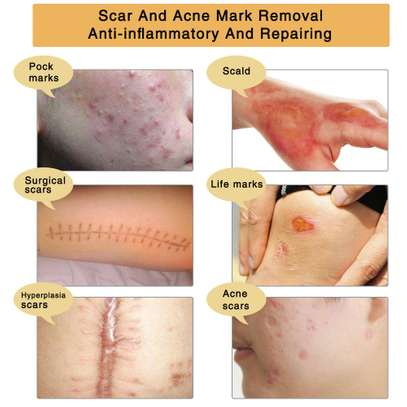 TCM Scar & Acne Mark Removal Gel Ointment image 2