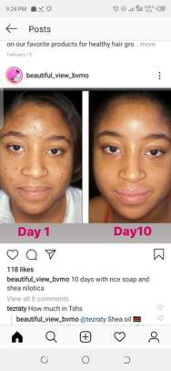 Acne and dark spots removal