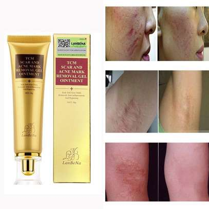 TCM Scar & Acne Mark Removal Gel Ointment