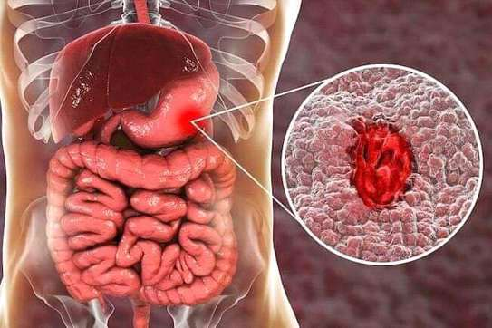 HOW TO GET RID OF ULCERS image 1