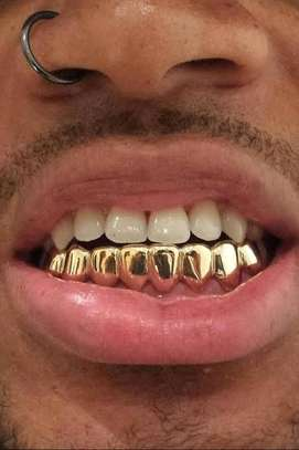 Grillz teeth hip hop