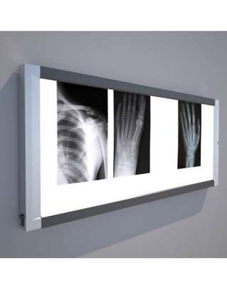 Double Film Conventional X-Ray View Box image 1
