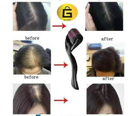 Hair Regrowth Derma Roller image 1