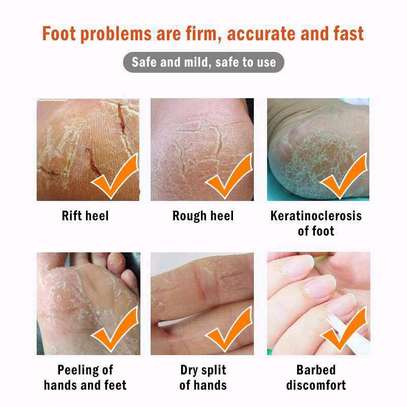 Foot Care Dead Skin Removed image 2