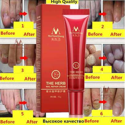 Nail Repair Treatment